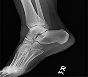 Xray image of a human ankle