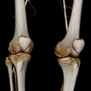 CT image of the knees
