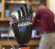 prosthetic hand with sensors for feeling