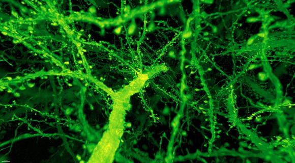 glowing neurons