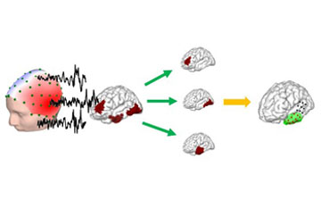 illustration showing how high definition EEG works