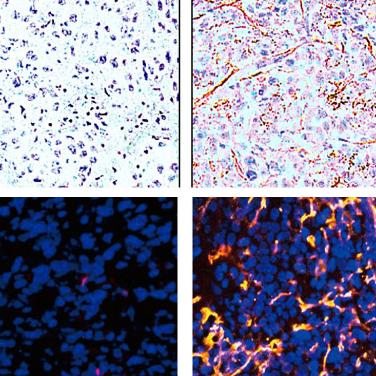 prostate tissue stain reveals EDB-FN in high grade tumors
