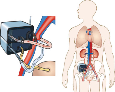 Schematic of placement of artificial implantable kidney