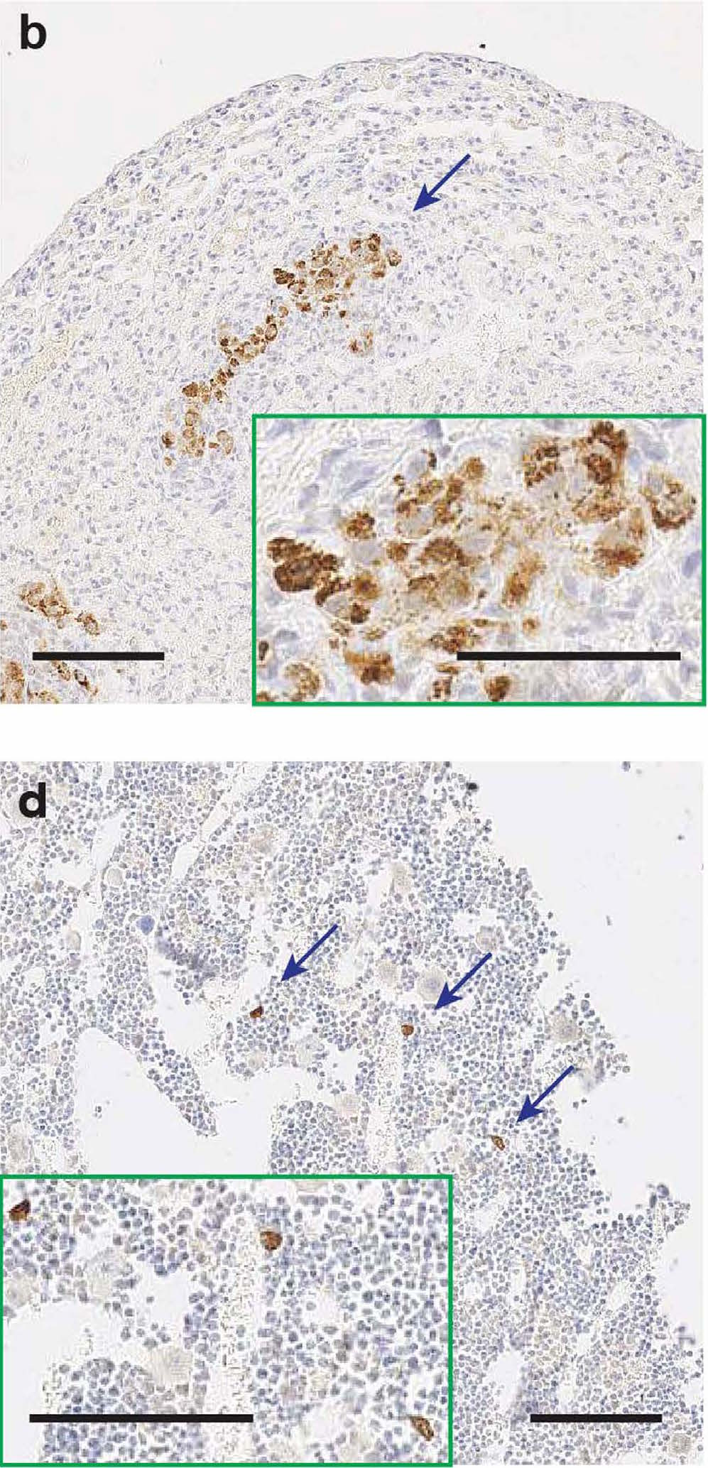 Image of cancer metastasis in mice.