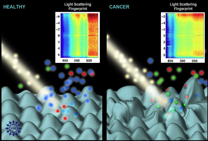 Light signals from tissue allow researchers to detect subtle changes in cellular structures that could result from cancer.
