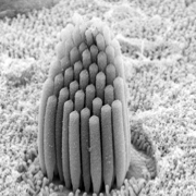 Image taken using scanning electron microscope