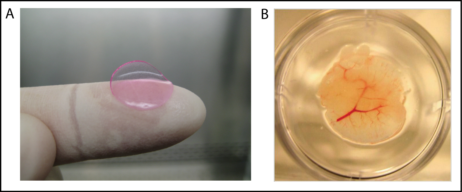 A: To the naked eye, a HEAL looks like a pink contact lens. Approximately 4/5 of an inch in diameter, the implant comprises half a million liver cells. B: Growth of blood vessels (red) enables implanted HEALs to grow and function in the mouse. This miniature human liver was removed from a HEAL-humanized mouse.