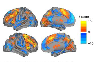 Image maps of the brain