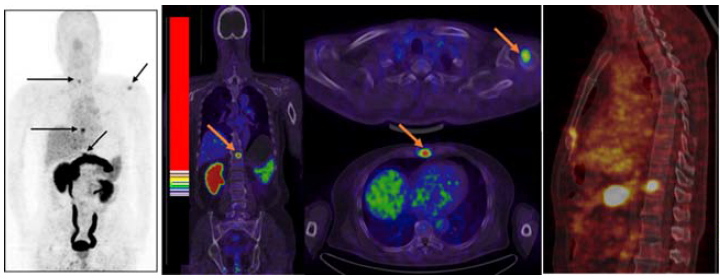 PET and CT scan images show prostate tumors glowing bright yellow, green, and black.