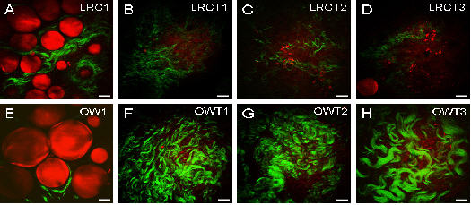 CARS imaging of fat cells (red) and SHG (Second Harmonic Generation - another NLO technique) imaging of collagen fibrils (green) used to evaluate the imapct of obesity on breast tumors.