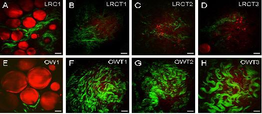Imágenes por microscopía CARS de células adiposas (rojo) y de fibrillas de colágeno (verde) por SHG (por sus siglas en ingles–Second Harmonic Generation o Generación de Segundo Armónico – otra técnica no lineal), utilizadas para evaluar el impacto de la obesidad en tumores del seno. Las imágenes de la fila superior son de ratas delgadas, mientras que las de la fila inferior son de ratas obesas. La primera imagen de cada fila (A y E) es de glándulas mamarias, mientras que las restantes (B-D y F-H) son del tejido que cubre a los tumores (estroma). Estas imágenes indican que la obesidad está asociada con un contenido reducido de colágeno en las glándulas mamarias y con un incremento en el contenido de colágeno y agresividad en tumores del seno. Escala de barras = 25 um. Imágen de Ignacio Camarillo.