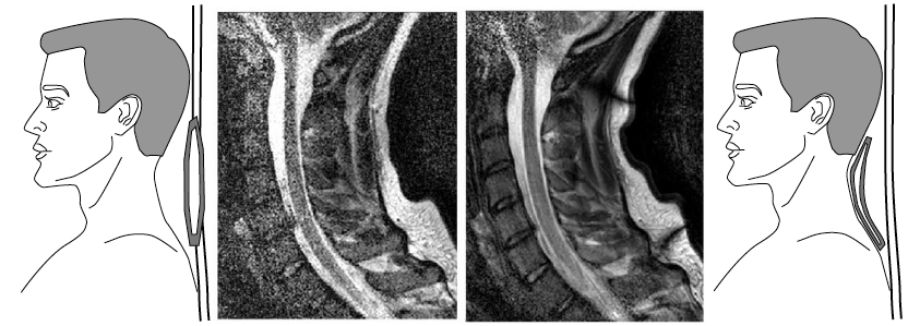 Two MRI images, one clearly better in quality, with drawings of coils and their placement.