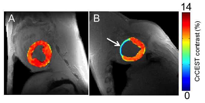 This is an image that demonstrates changes in creatine levels detected using CEST MRI  mapped onto anatomical images of pig heart tissue. Panel B shows decreased creatine levels as indicated by the blue color in an area that corresponds to tissue death