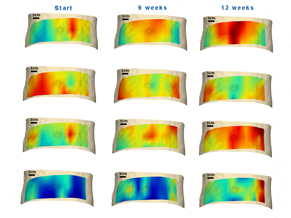 Diffuse optical spectroscopic imaging of adipose tissue metabolic changes during weight loss