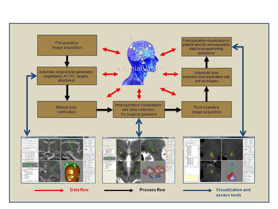 The CranialVault database and CRAVE user interface tools provide access to data from hundreds of patients who have undergone deep brain stimulation surgery. The interface tools help neurosurgeons reduce surgery time by pinpointing optimal sites for electrode implantation and more rapidly programming a patient's pulse generator to eliminate symptoms associated with movement disorders.