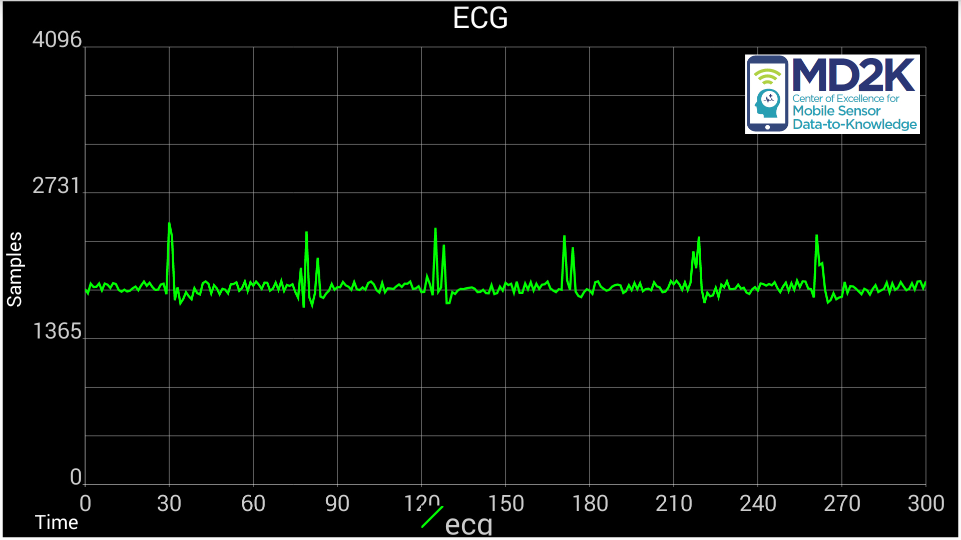 electrocardiogram display