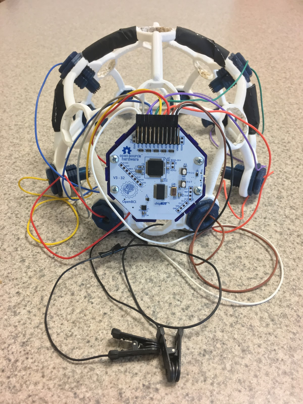 Disease Diagnostics Take Top Honors Of Debut Biomedical Engineering Innovative Wiring The Image Shows A White Plastic Device That Could Fit Over Patients Head With Many