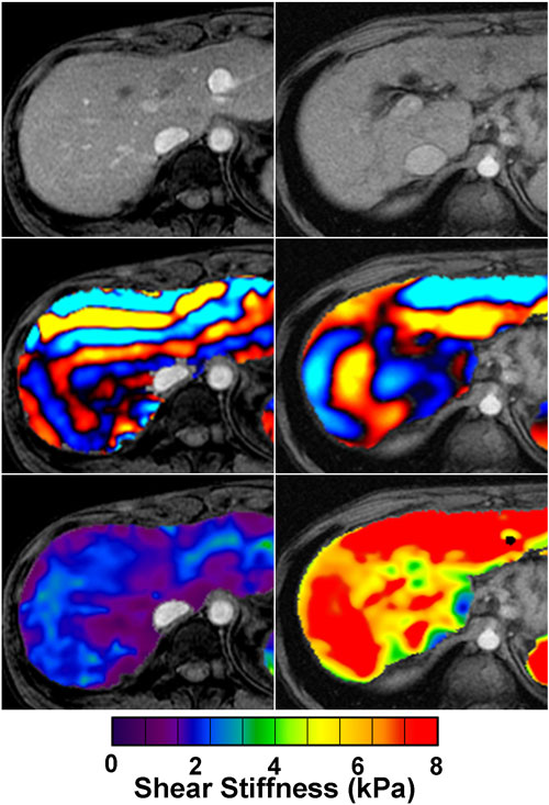 Contrast-enhanced magnetic resonance image (MRI) of a rat brain.