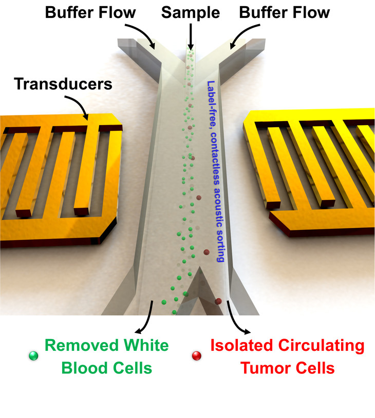schematic of acoustic tweezers separation of cancer cells from blood cells