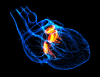 This is an image of a translucent heart