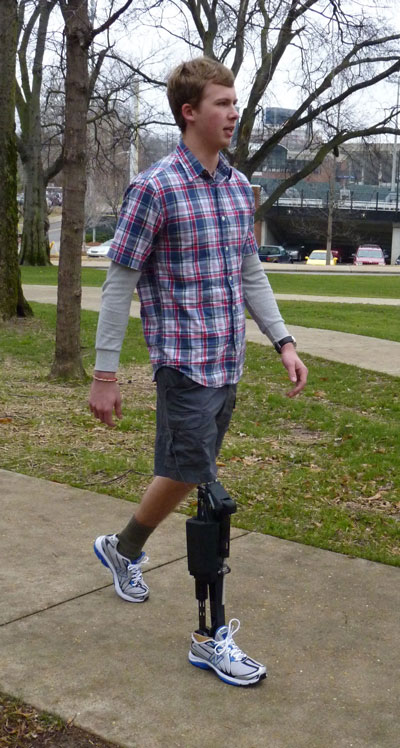 Lower leg amputee walking with the Vanderbilt powered prosthesis. The powered prosthesis reproduces many essential characteristics of healthy biomechanical walking, such as knee flexion during the various phases of walking, resistance of ankle flexion during heel strike, and powered ankle flexion during push-off, which other prostheses do not provide.