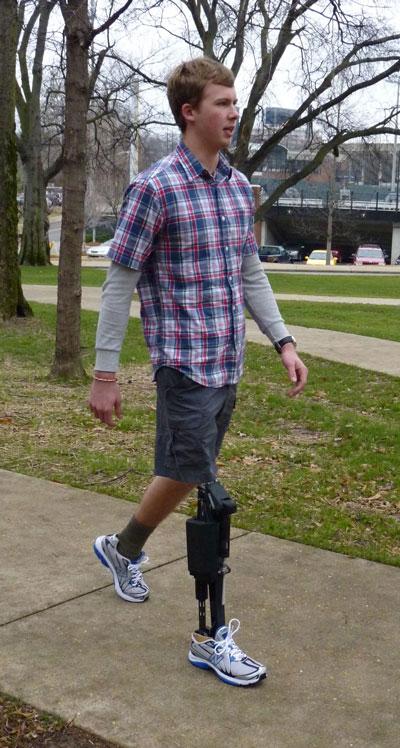 Un amputado de su pierna inferior caminando con la prótesis motorizada de Vanderbilt. La prótesis motorizada reproduce muchas de las características esenciales del caminar biónico saludable, como la flexión de la rodilla durante las diversas fases del caminar, la resistencia de la flexión del tobillo al pisar, y la flexión motorizada del tobillo al despegar del piso, que otras prótesis no pueden proporcionar.