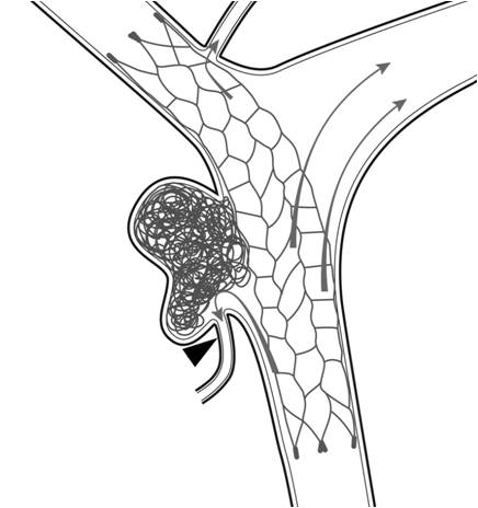 This schematic of a wide-neck brain aneurysm depicts a retrievable stent designed to help hold a coil mass in the aneurysm. Arrows indicate the direction of blood flow. Arrowhead shows a small brain artery that stays open as a result of the coils' deployment.