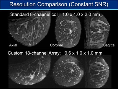 Comparison of 3D images using a standard breast coil (top) and the custom Stanford breast coil with similar scan times (bottom) in a healthy volunteer. The 18-channel array of small coils allows much sharper images to be obtained and offers clearer views of the breast in three perpendicular directions.