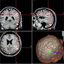 Three MRI image slices of a brain and one three dimensional image of a brain