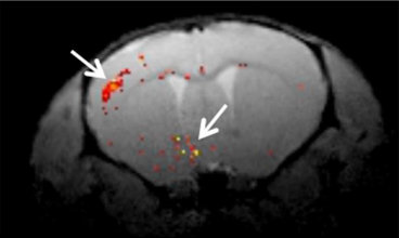 Mouse brain MRI showing orange dots of gene expression