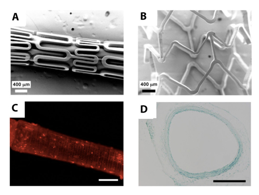 Films coated on intravascular stents (A, before inflation; B, after inflation) or catheter balloons (C, D) could be used to deliver therapy to the blood vessel wall during angioplasty. Fluorescence microscopy (C) reveals the presence of fluorescently labeled DNA (red) within a polymer film coated on the surface of a catheter balloon. To prove that the film can deliver a functioning gene to an artery wall, researchers used an assay that produces blue precipitate in cells. Blue color (D) indicates that that the film successfully delivered the gene. (Images A and B reprinted with permission from Biomacromolecules, 7(9), Jewell CM, Zhang J, Fredin NJ, Wolff MR, Hacker TA, Lynn DM. Release of plasmid DNA from intravascular stents coated with ultrathin multilayered polyelectrolyte films, 2483-2491. Copyright © 2006 American Chemical Society. Images C and D reprinted from Biomaterials, 32, Saurer E, Yamanouchi D, Liu B, Lynn DM. Delivery of plasmid DNA to vascular tissue in vivo using catheter balloons coated with polyelectrolyte multilayers, 610-618. Copyright © 2010, with permission from Elsevier.