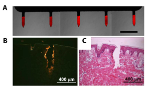 Microneedles bearing an ultrathin film can be used to deliver DNA-based vaccines through the skin. Fluorescently labeled DNA glows red (A). In the skin, yellow color signifies that the needles delivered the DNA (B). Histology staining reveals that the microneedle penetrated through the two topmost layers of the skin (C). (Images reprinted with permission from Biomacromolecules, 11, Saurer EM, Flessner RM, Sullivan SP, Prausnitz MR, Lynn DM. Layer-by-layer assembly of DNA- and protein-containing films on microneedles for drug delivery to the skin, 3136-3143. Copyright © 2010 American Chemical Society.