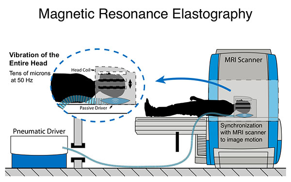 Illustration of magnetic resonance elastography, or MRE, a non-invasive technique used to measure the mechanical properties of biological tissue. Diagram shows how MRE is used to palpate tissue in the brain by sending shear waves through that tissue and measuring their displacement.