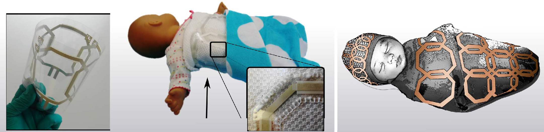 A photo of the flexible MRI coil, a photo of the coil wrapped around a doll, and a drawing showing the coils in a blanket and hat wrapped around a baby.