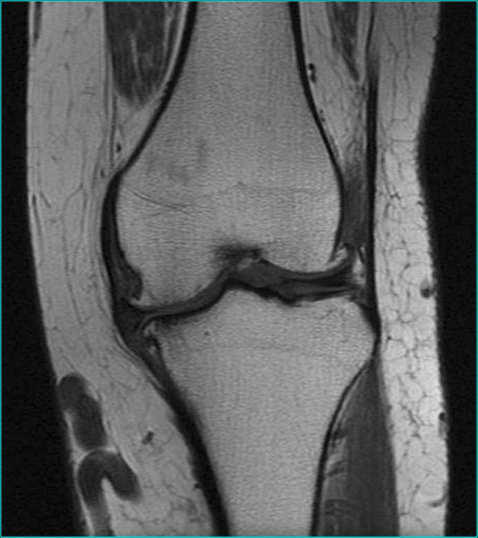 MRI of a knee