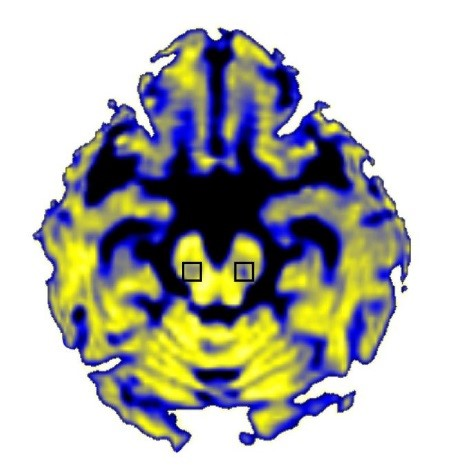 Brain MRI of Free Water