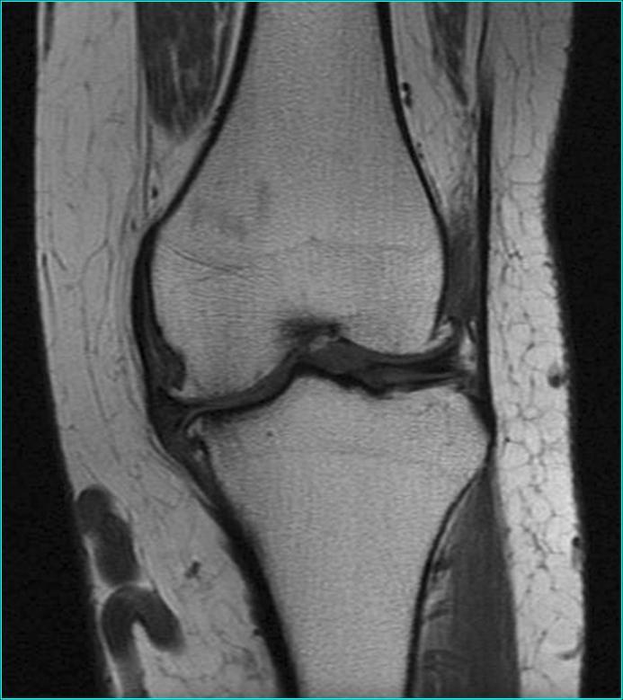 Imagen por IRM de una rodilla
