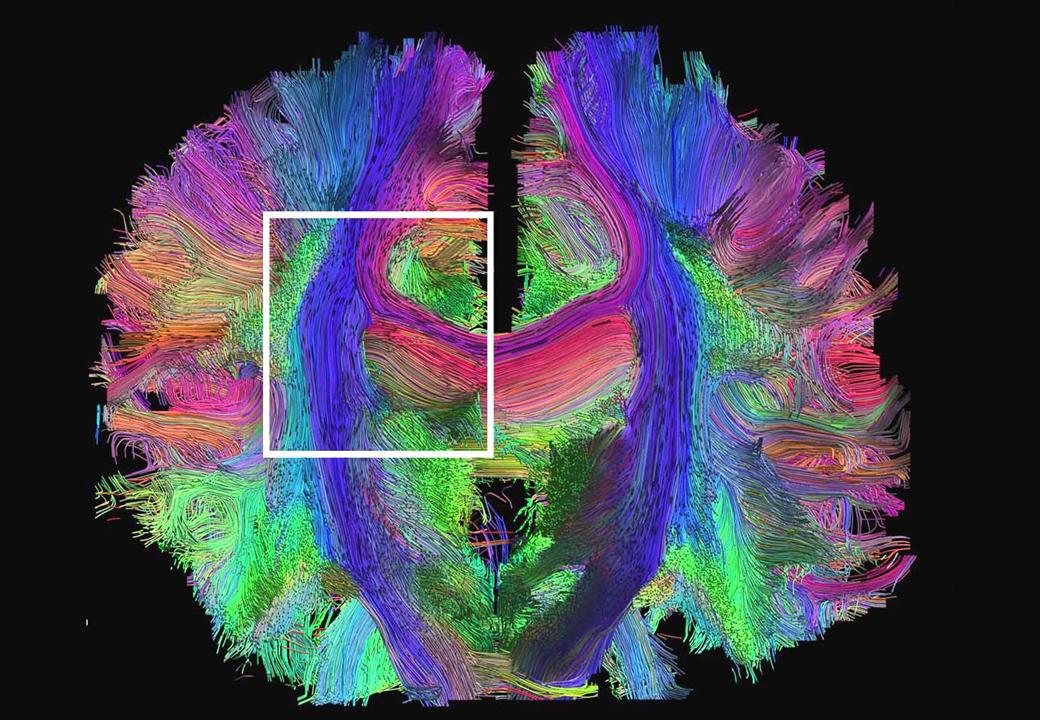 Hilos de colores representan las múltiples conexiones dentro del cerebro