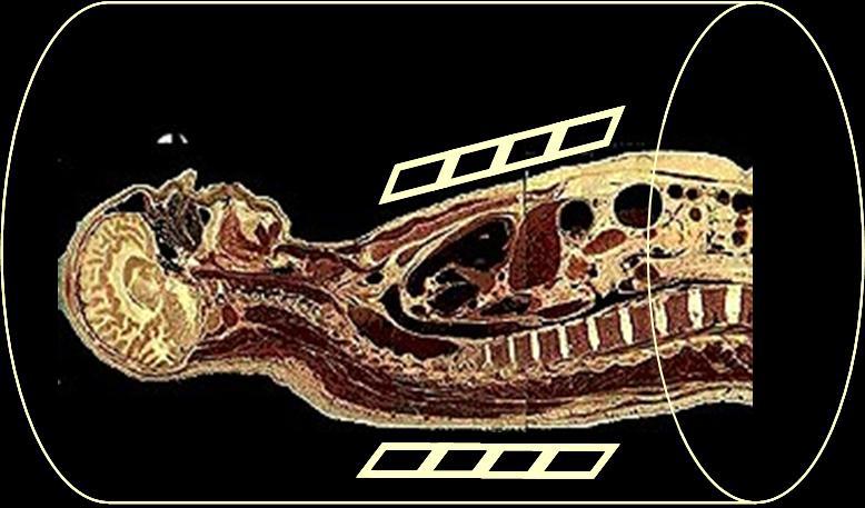 Imagen por IRM de la parte superior del cuerpo y la cabeza de una persona