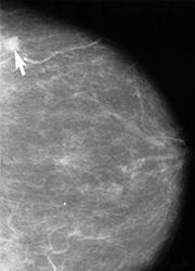 Esta es una imagen de un mamograma mostrando una pequeña lesión cancerosa