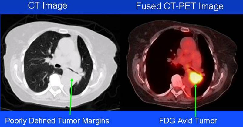 Una imagen de TC a la izquierda y una imagen fusionada de TC y TEP a la derecha