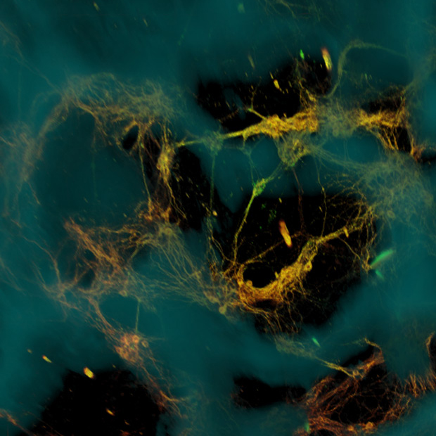 Microscopic image of neurons forming connections on a scaffold.
