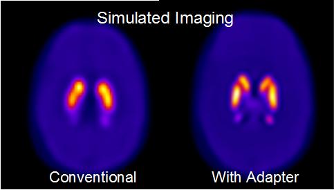 Escaneo del cerebo simulado usando tomografía computarizada por emisión de fotón único en comparación con un escaneo usando esta tecnología con un adaptador que proporciona una imagen más detallada de un cerebro afectado con la enfermedad de Parkinson
