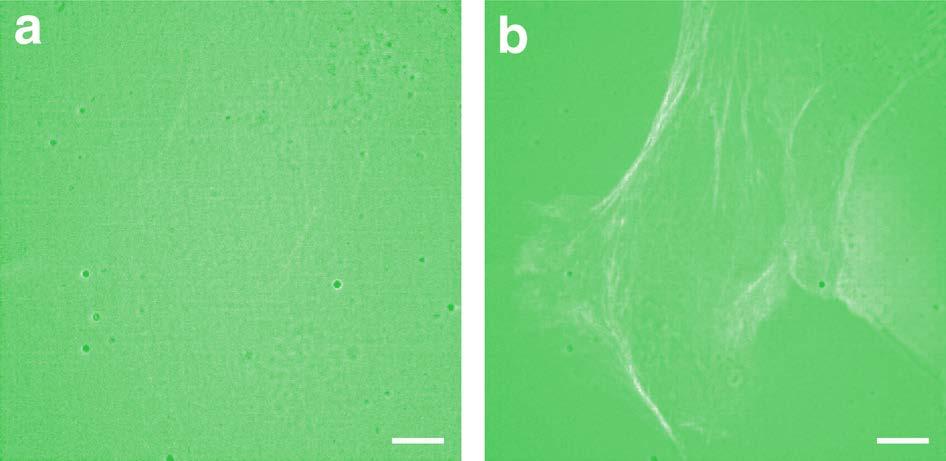 Two-step fluorescence microscopy comparison