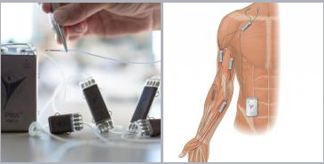 photo and illustration of networked neuroprosthetic system