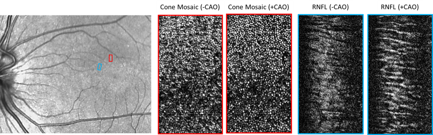 This image consists of three black and white pictures. On the left is a close up of a human retina. The middle compares images of photoreceptors before and after using computational adaptive optics. The right compares images of the retinal nerve fiber layer before and after using computational adaptive optics.