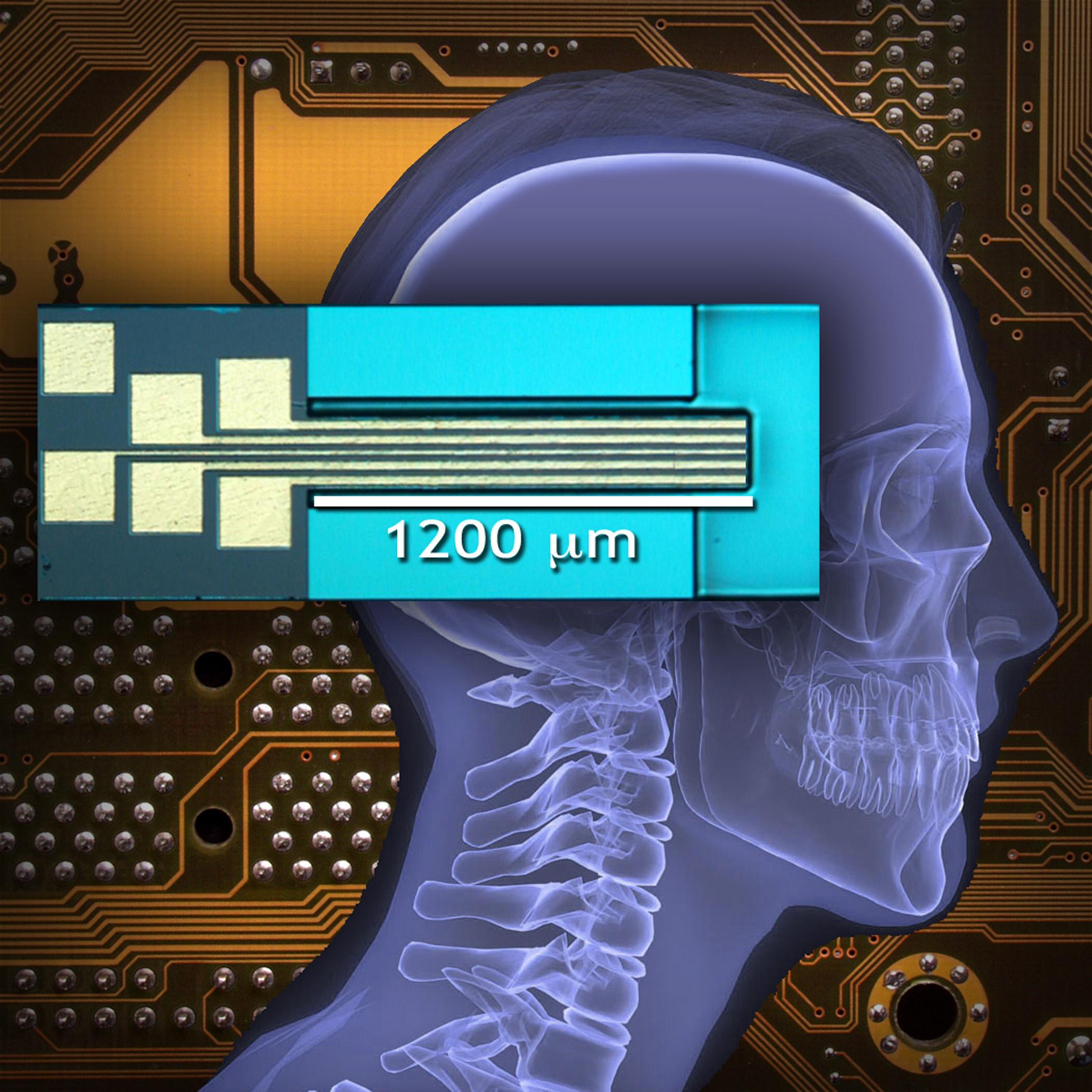 El clamp neural activo de las raíces medulares puede mejorar el movimiento en personas con lesiones de la médula espinal o que se estén recuperando de un infarto cerebral. Los contactos de la zona de soldadura de hilos oro para 5 electrodos puede observarse en este clamp. Estos pueden proporcionar estimulación nerviosa o retroalimentación para refinar el movimiento. Cortesía: Ranu Jung, Instituto de Biodiseño (Biodesign Institute), ASU