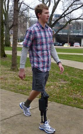 Foto de un hombre joven caminando con una prótesis de pierna robótica