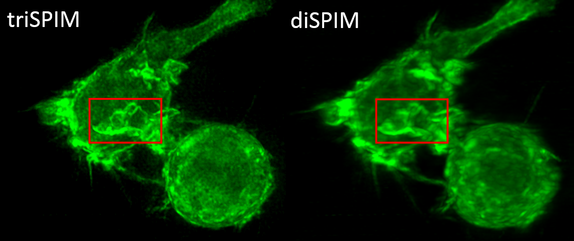 image of fluorescing immune cell using three lens microscope
