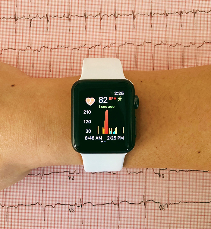Smartwatch running app to detect atrial fibrillation